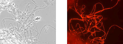 Microscopic image: phase contrast (left), Microthrix parvicella shining red after analysis with gene probe technology (right).