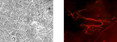 Identical microscopic image: phase contrast (left), Haliscomenobacter hydrossis shining specifically red after analysis with gene probe technology (right).