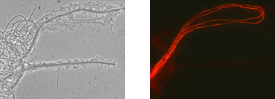 Identical microscopic image: phase contrast (left), Eikelboom Type 1851 filaments shining red after analysis with gene probe technology (right).