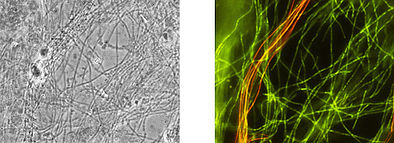 Identical microscopic image after analysis with the test kit: phase contrast, Chloroflexi filaments shine in green, Eikelboom Type 1851 shines in red.
