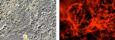 Identical microscopic image: phase contrast (left), Microthrix parvicella shining specifically red after analysis with gene probe technology (right).