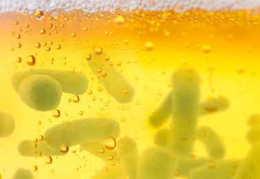 Test kit VIT® Beer Screening